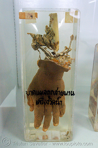 severed hand, preserved - forensic medicine museum, โรงพยาบาลศิริราช - siriraj hospital, bangkok (thailand), anatomy, bangkok, body part, cadaver, corpse, dead, death, forensic medicine museum, human remains, severed hand, siriraj hospital, specimen, thailand, บางกอก, โรงพยาบาลศิริราช