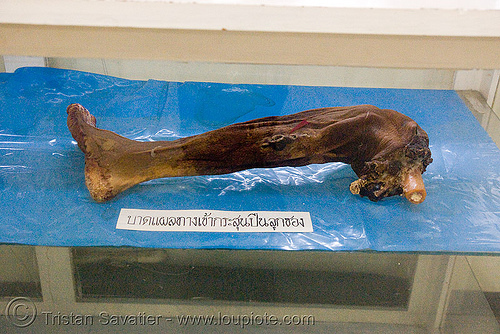 severed human leg, preserved - forensic medicine museum, โรงพยาบาลศิริราช - siriraj hospital, bangkok (thailand), anatomy, bangkok, body part, cadaver, corpse, dead, death, foot, forensic medicine museum, human remains, severed leg, siriraj hospital, thailand, บางกอก, โรงพยาบาลศิริราช